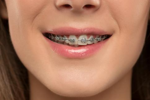aparat-ortodontyczny-na-zebach