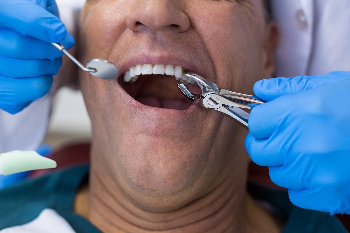 Kiedy konieczne jest usunięcie zęba?