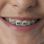 Białe, żółte czy niebieskie – czy ligatury ortodontyczne wpływają na wygląd naszych zębów?